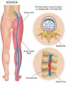 sciatica slipped disc