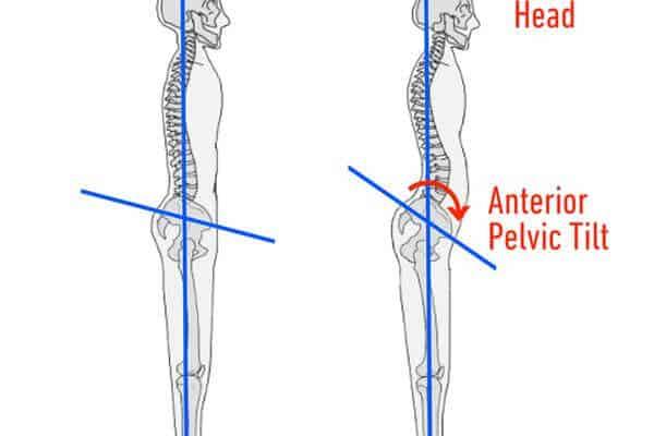 9. anterior pelvic tilt