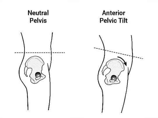 Anterior pelvic tilt 11