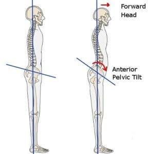 Anterior pelvic tilt 2